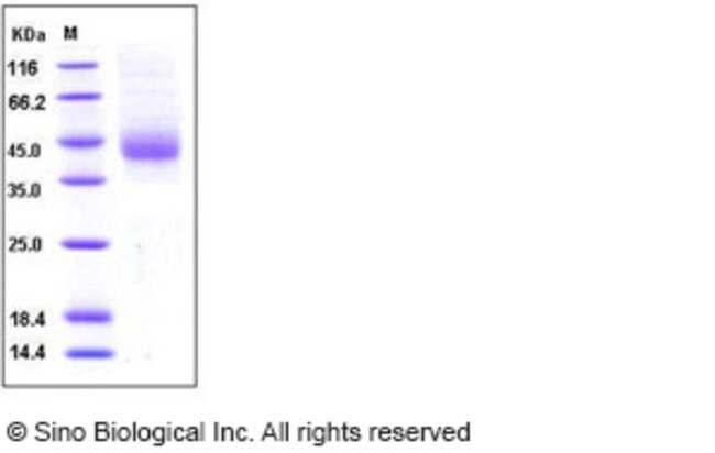 Sino Biological Human TFPI Protein (His Tag)  HUMAN TFPI,20UG