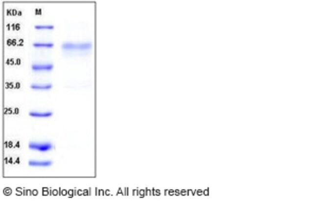 Sino Biological Mouse HVEM / TNFRSF14 Protein (His & Fc Tag)  MOUSE HVEM/TNFRSF14,200UG