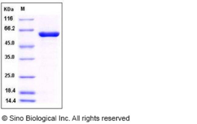 Sino Biological Human PTPN2 / TC-PTP Protein (aa 1-314, His & GST Tag)