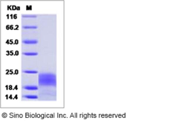 Sino Biological Human PDGF-B Protein (His Tag)  HUMAN PDGF-B,50UG
