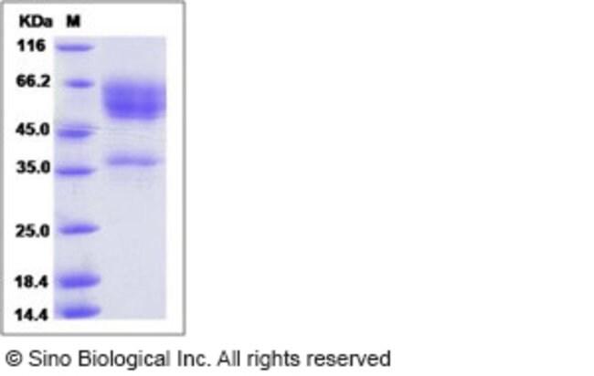 Sino Biological Human NKG2D / CD314 / KLRK1 Protein (Fc Tag)  HUMAN NKG2D/CD314/KLRK1,100UG