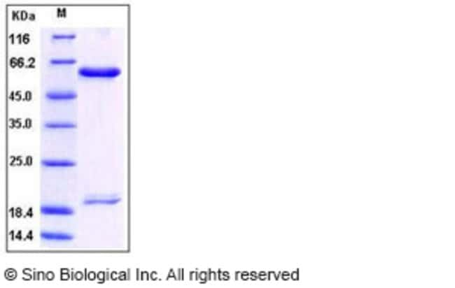 Sino Biological Human PCSK9 / NARC1 Protein (His Tag)  HUMAN PCSK9/NARC1,10UG