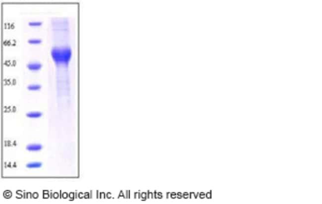 Sino Biological Rat ALK-1 / ACVRL1 Protein (His & Fc Tag)  RAT ALK-1/ACVRL1,200UG