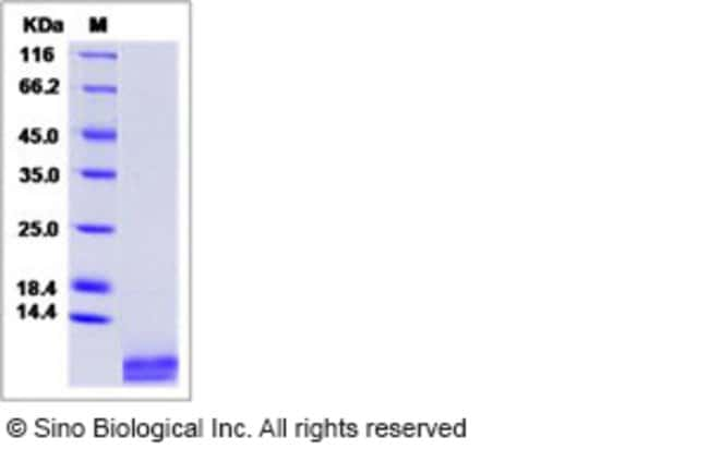 Sino Biological Human LR3 IGF-1 / IGF-I / IGF1 Protein  HUMAN IGF1 LR3,1MG