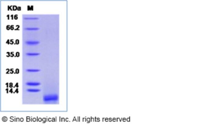 Sino Biological Human Epidermal Growth Factor / EGF Protein  HUMAN EGF,1MG