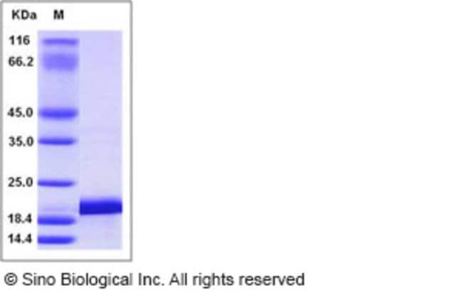 Sino Biological Human IL1F6 / IL36A Protein (His Tag)  HUMAN IL1F6/IL36A,10UG