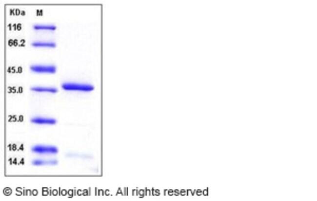 Sino Biological Human HTRA2 / OMI Protein (His Tag)  HUMAN HTRA2/OMI,100UG