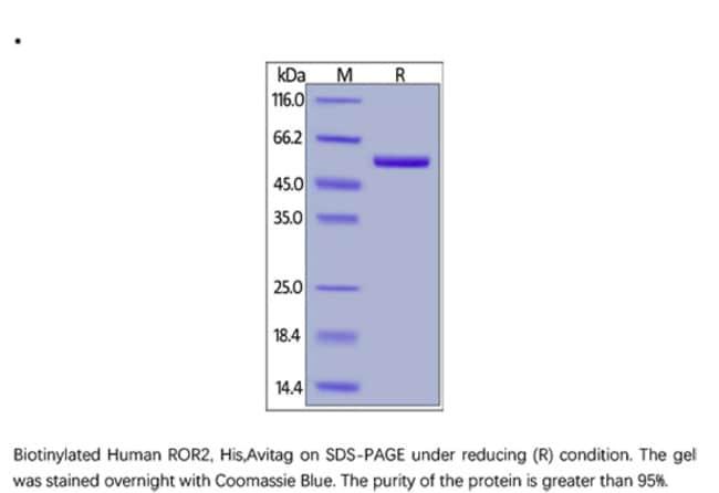 ACROBiosystemsACROBiosystems Biotinylated Human ROR2 / NTRKR2 Protein,