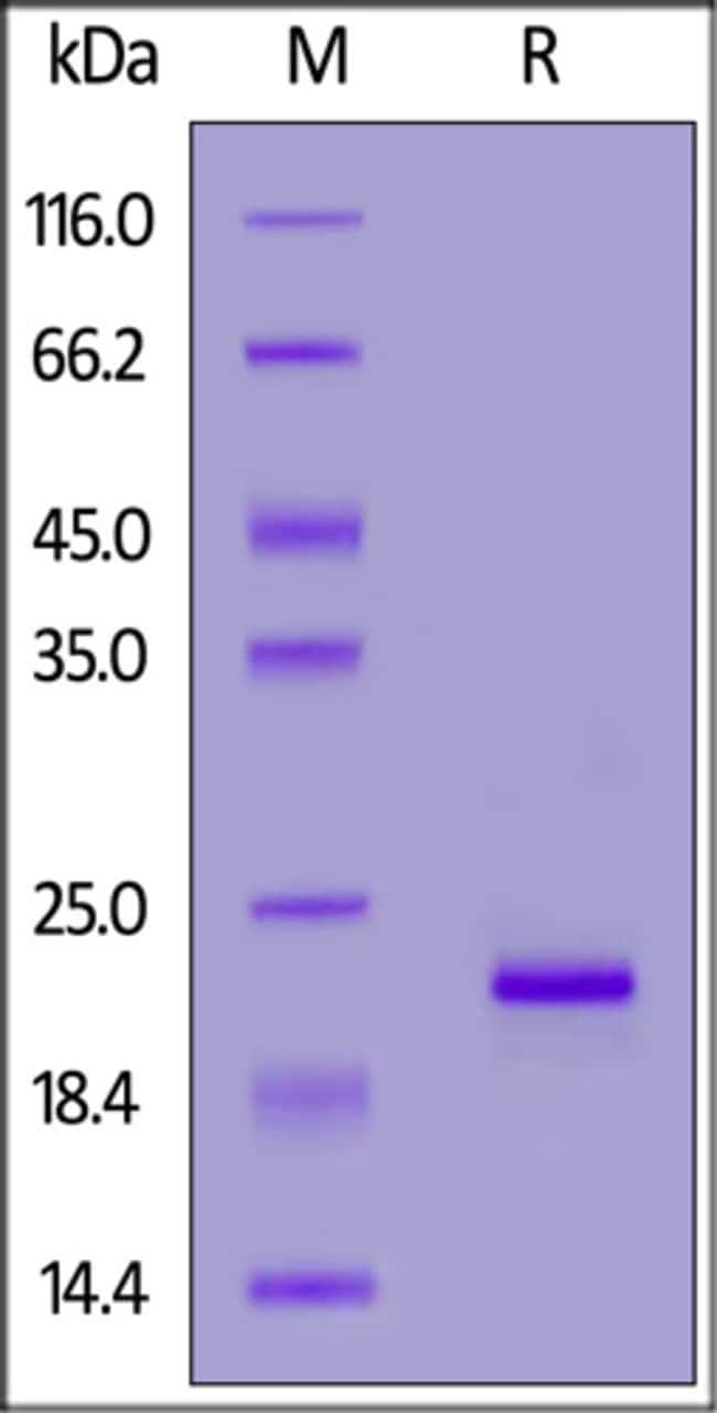 ACROBiosystemsBiotinylated Human Alpha-Synuclein Protein, His,Avitag