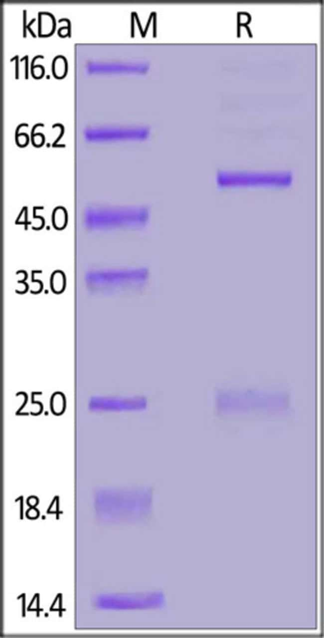 ACROBiosystemsFITC-LabeledMonoclonal Anti-DNP antibody, Human IgG1 Isotype