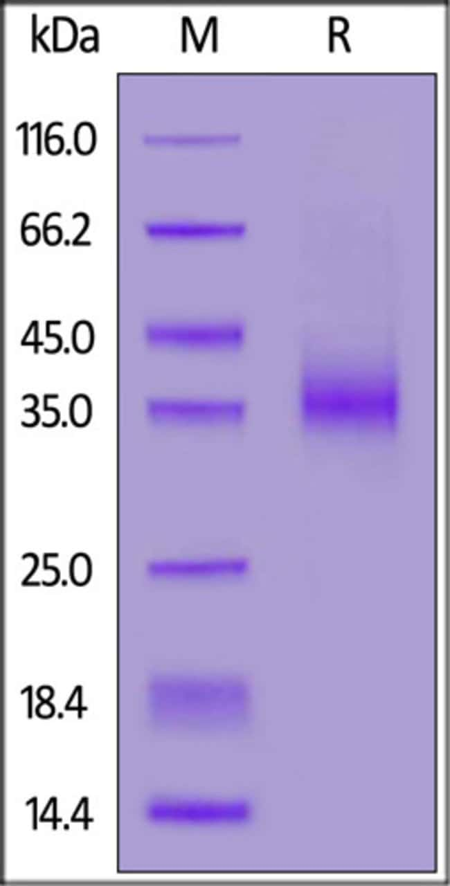 ACROBiosystemsRecombinant Protein;Biotinylated Human EpCAM / TROP1 Protein,