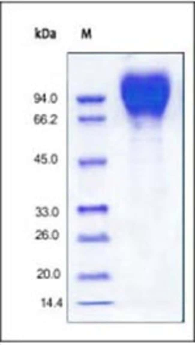 ACROBiosystemsRecombinant Protein;Recombinant HIV-1 [HIV-1/Clade B/C (CN54)]