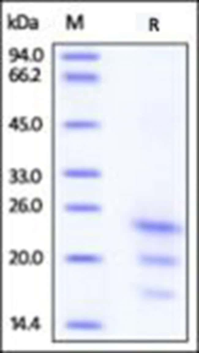 ACROBiosystemsRecombinant Protein;ActiveMax Recombinant Human IFN-gamma