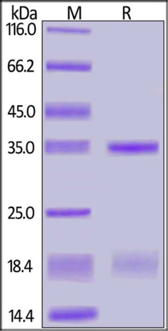 ACROBiosystemsSARS-CoV-2 (COVID-19) NSP16&NSP10 Heterodimer Protein, His