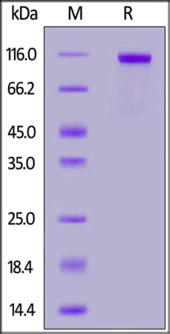 ACROBiosystemsBiotinylated Human PTK7 / CCK4 protein, His,Avitag