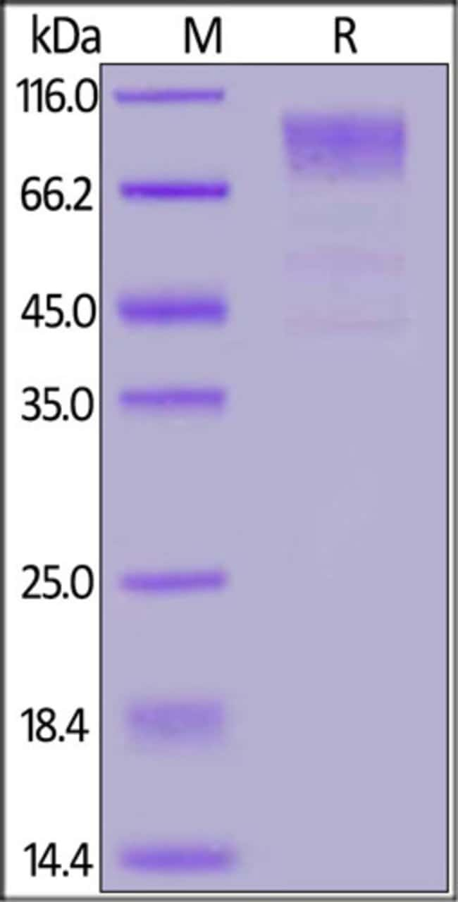 ACROBiosystemsHCoV-229E S1 protein, His Tag