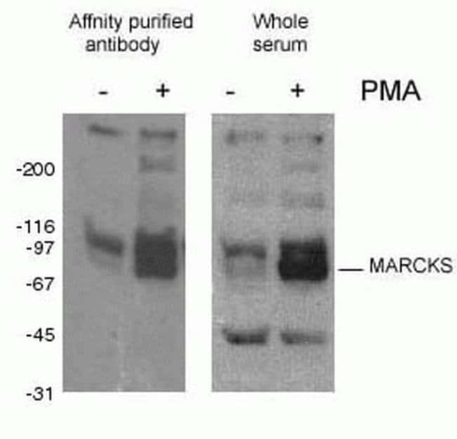 Phospho-MARCKS (Ser93, Ser97, Ser104) Rabbit anti-Human, Mouse, Polyclonal, Proteintech 20 μL; Unconjugated Produkte