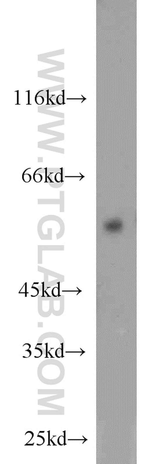 MAPK7 Rabbit anti-Human, Mouse, Polyclonal, Proteintech 20 μL; Unconjugated Produkte