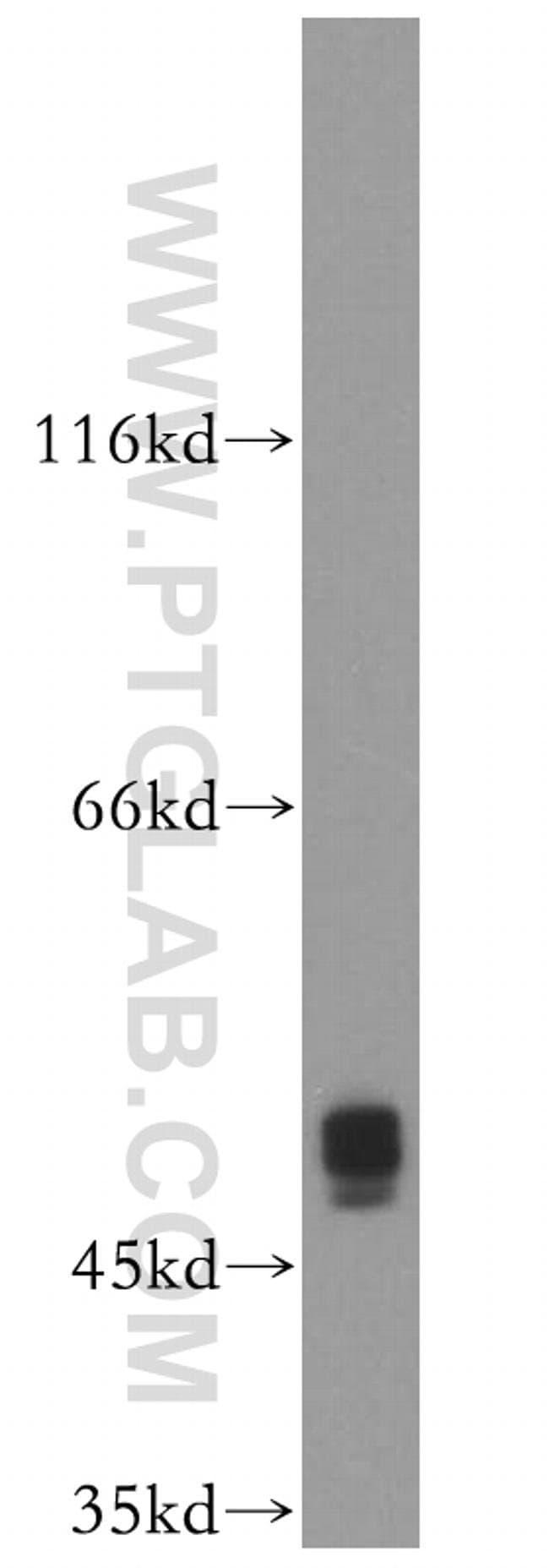 XIAP Rabbit anti-Human, Rat, Polyclonal, Proteintech 20 μL; Unconjugated voir les résultats