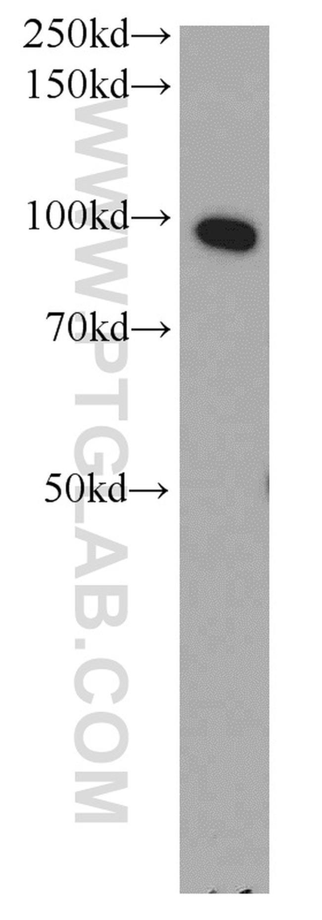 ELAC2 Rabbit anti-Human, Mouse, Rat, Polyclonal, Proteintech 150 μL; Unconjugated voir les résultats