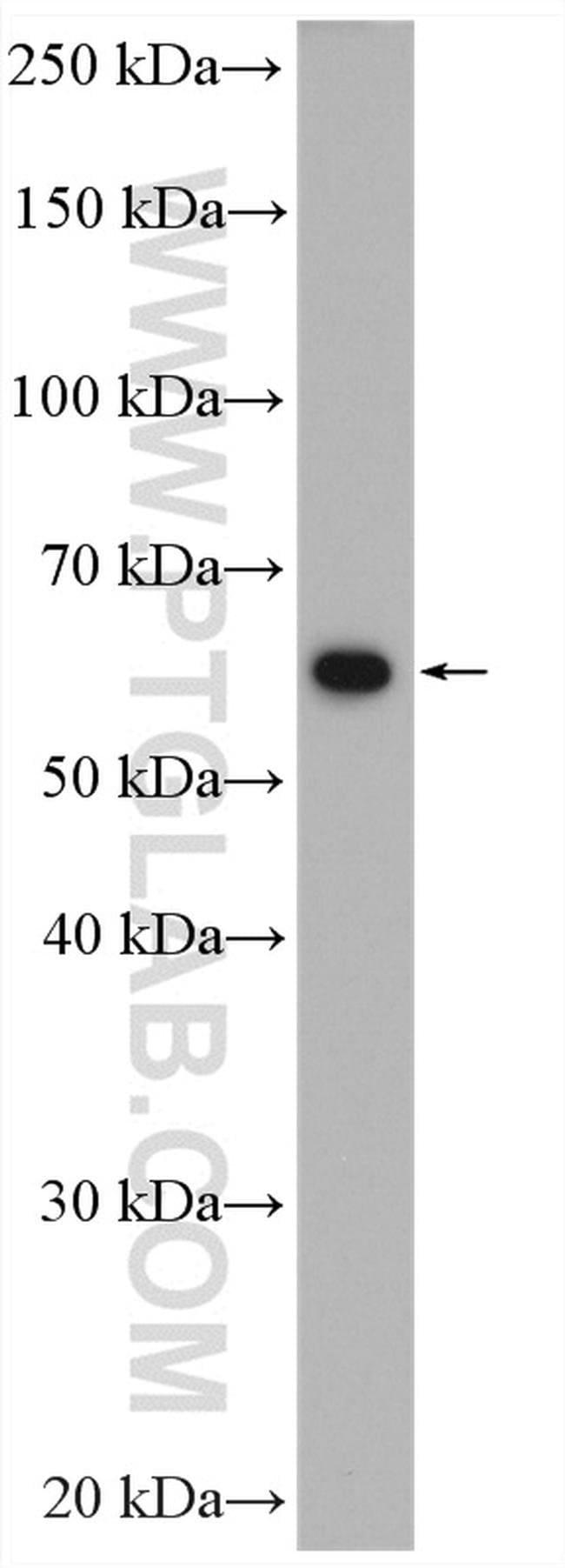 PKM Rabbit anti-Human, Mouse, Polyclonal, Proteintech 150 μL; Unconjugated Produkte