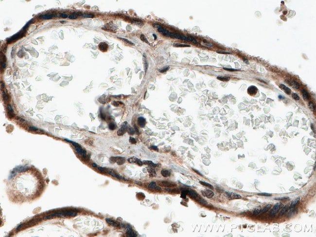 NOB1 Rabbit anti-Human, Mouse, Rat, Polyclonal, Proteintech 20 μL; Unconjugated Ver productos