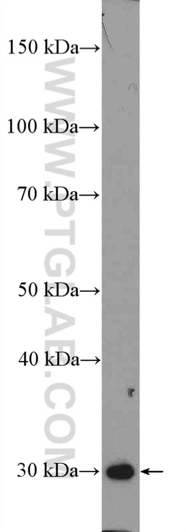 SIRT3 Rabbit anti-Human, Mouse, Rat, Polyclonal, Proteintech 150 μL; Unconjugated Ver productos