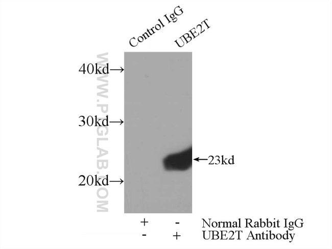 UBE2T/HSPC150 Rabbit anti-Human, Mouse, Rat, Polyclonal, Proteintech 150 μL; Unconjugated Ver productos