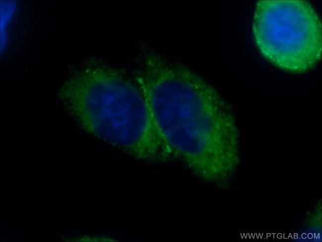 DAB2 Rabbit anti-Human, Polyclonal, Proteintech 20 μL; Unconjugated voir les résultats