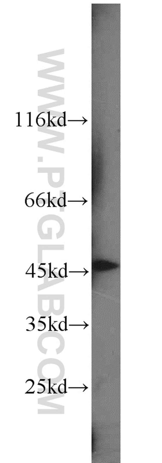 SNX6 Rabbit anti-Human, Mouse, Rat, Polyclonal, Proteintech 20 μL; Unconjugated Produkte