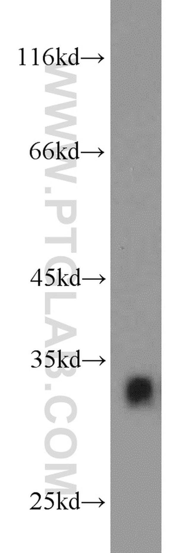 CDK2 Rabbit anti-Human, Mouse, Rat, Polyclonal, Proteintech 20 μL; Unconjugated voir les résultats