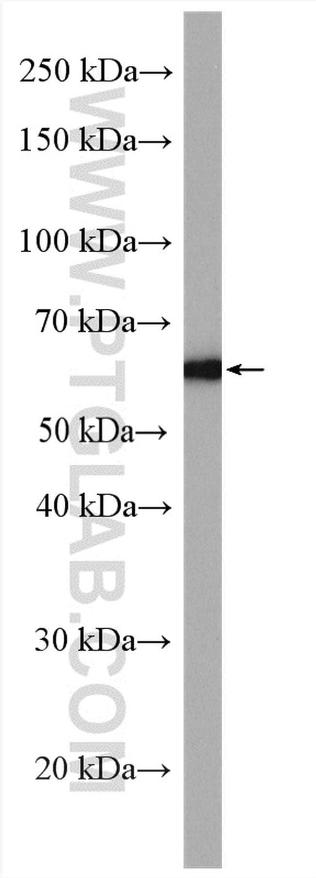 CPNE1 Rabbit anti-Human, Polyclonal, Proteintech 20 μL; Unconjugated Produkte