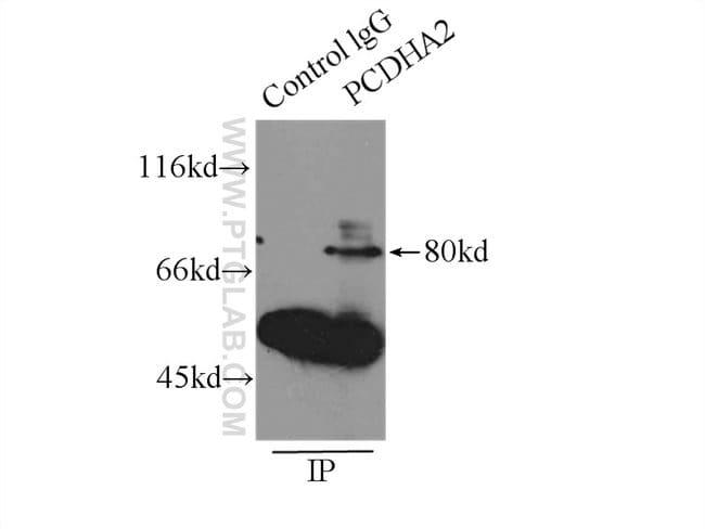 PCDHA2 Rabbit anti-Human, Polyclonal, Proteintech 20 μL; Unconjugated voir les résultats