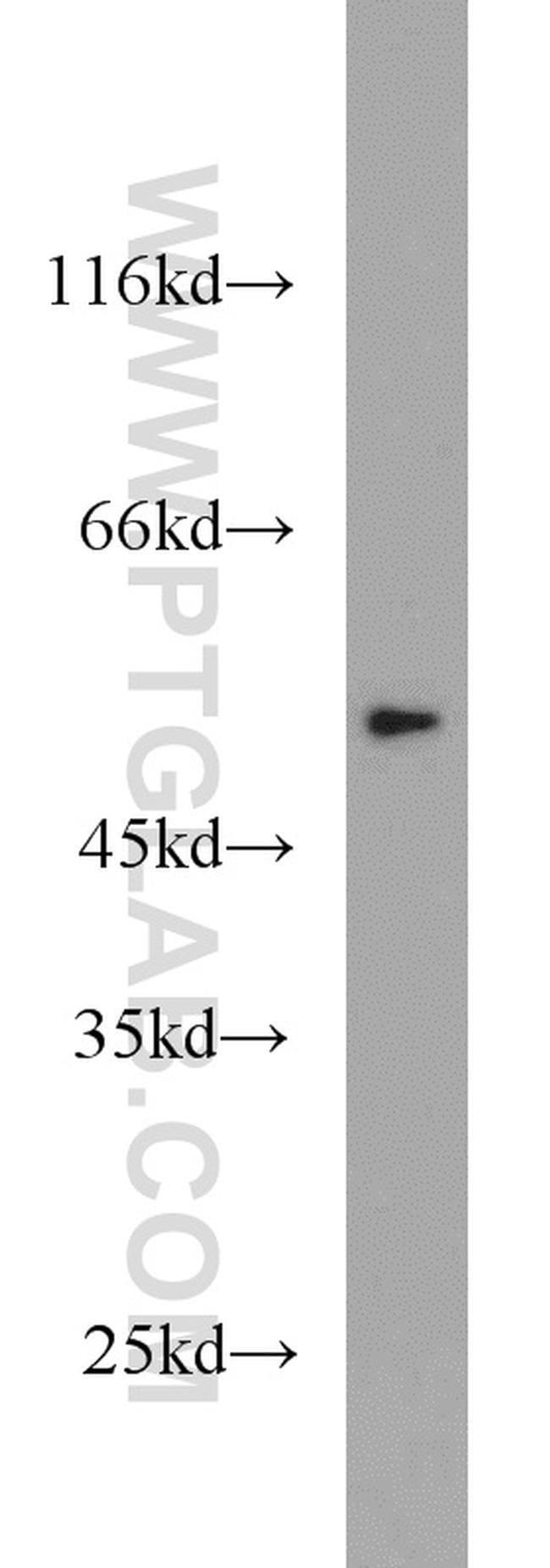THRA Rabbit anti-Human, Mouse, Rat, Polyclonal, Proteintech 20 μL; Unconjugated Produkte