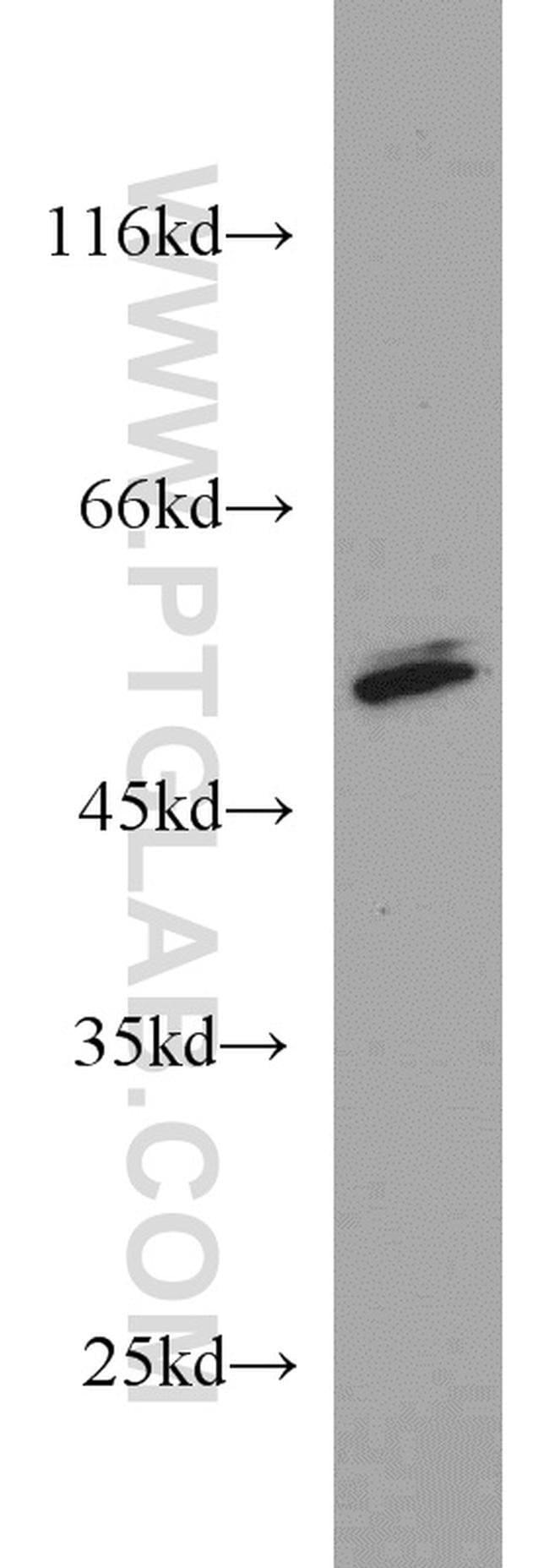 PRKAR2A Rabbit anti-Human, Mouse, Rat, Polyclonal, Proteintech 150 μL; Unconjugated Ver productos