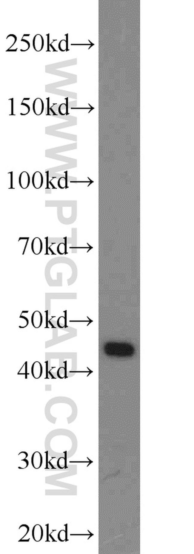 PREB Rabbit anti-Human, Mouse, Polyclonal, Proteintech 20 μL; Unconjugated voir les résultats