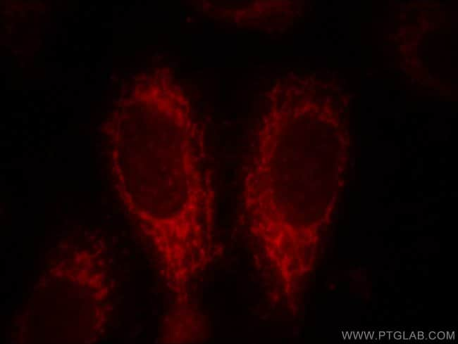 ACSM3 Rabbit anti-Human, Mouse, Rat, Polyclonal, Proteintech 150 μL; Unconjugated Ver productos