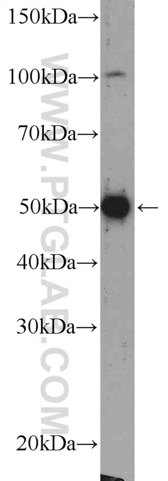 Beta Arrestin 2 Rabbit anti-Human, Mouse, Polyclonal, Proteintech 20 μL; Unconjugated Produkte