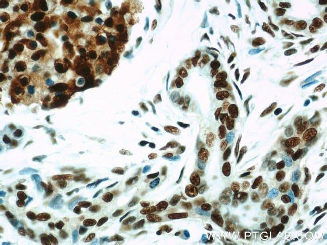HDAC1 Rabbit anti-Human, Mouse, Rat, Polyclonal, Proteintech 150 μL; Unconjugated Ver productos