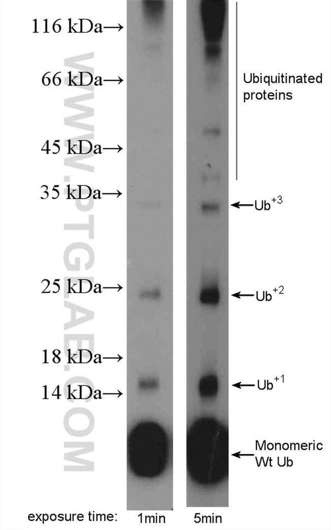 ubiquitin Rabbit anti-Human, Mouse, Rat, Polyclonal, Proteintech 20 μL; Unconjugated voir les résultats
