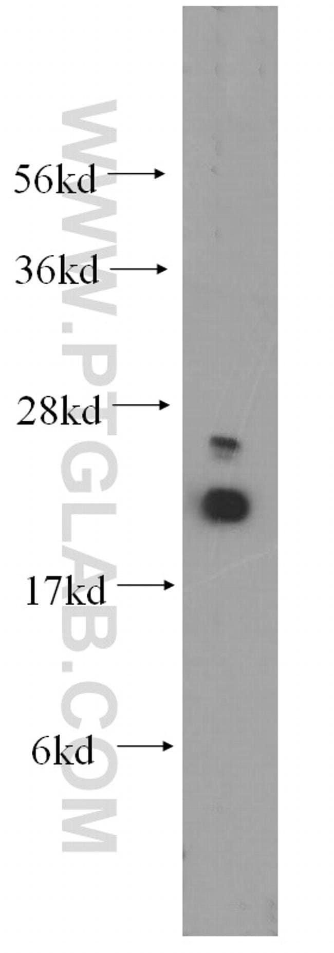UBC9 Rabbit anti-Human, Mouse, Rat, Polyclonal, Proteintech 150 μL; Unconjugated voir les résultats