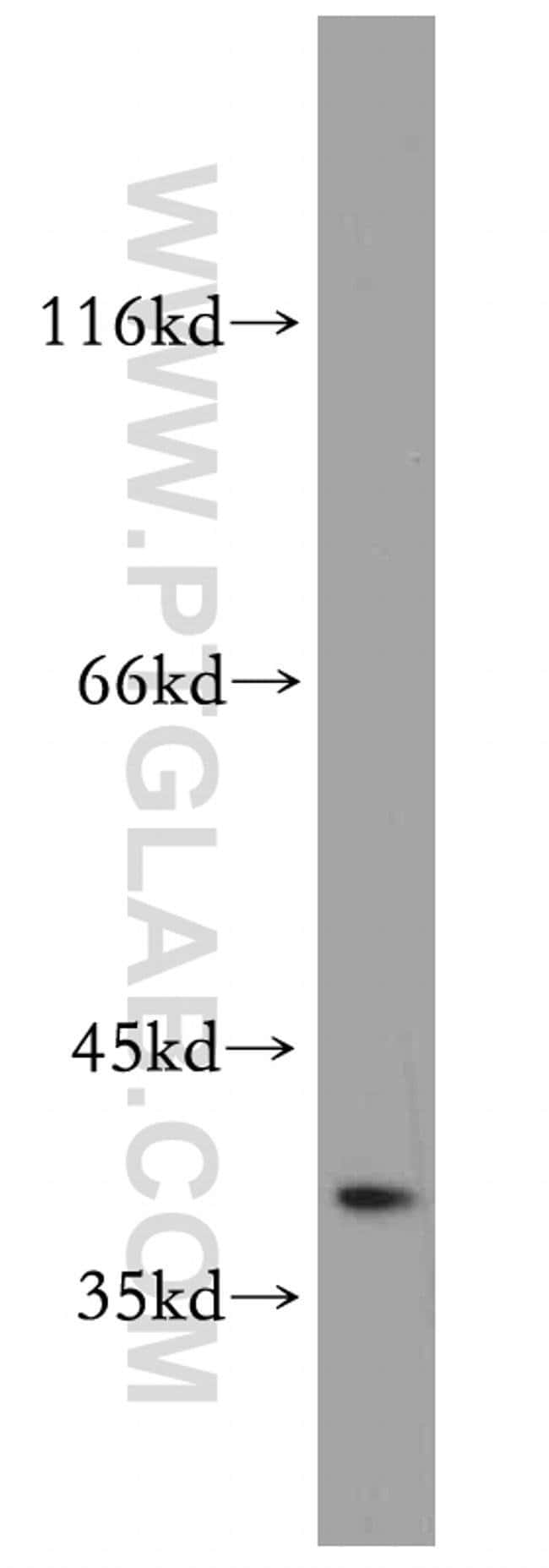 SAE1 Rabbit anti-Human, Mouse, Rat, Polyclonal, Proteintech 150 μL; Unconjugated voir les résultats