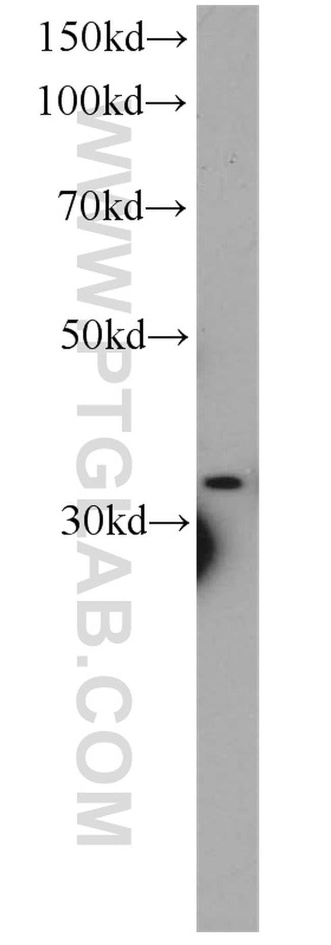CYC1 Rabbit anti-Human, Mouse, Polyclonal, Proteintech 20 μL; Unconjugated Ver productos