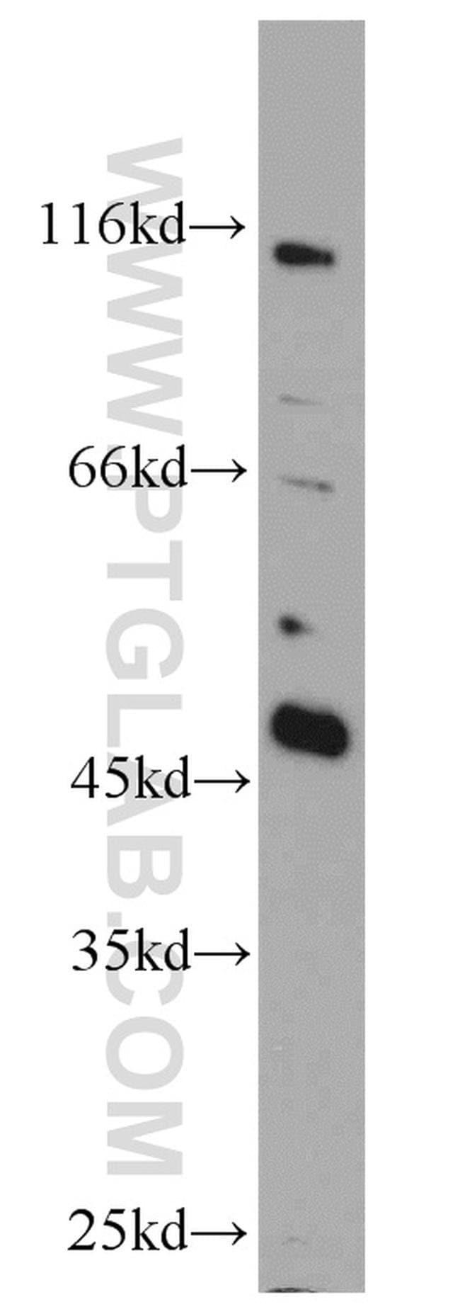 TES Rabbit anti-Human, Mouse, Rat, Polyclonal, Proteintech 20 μL; Unconjugated Ver productos