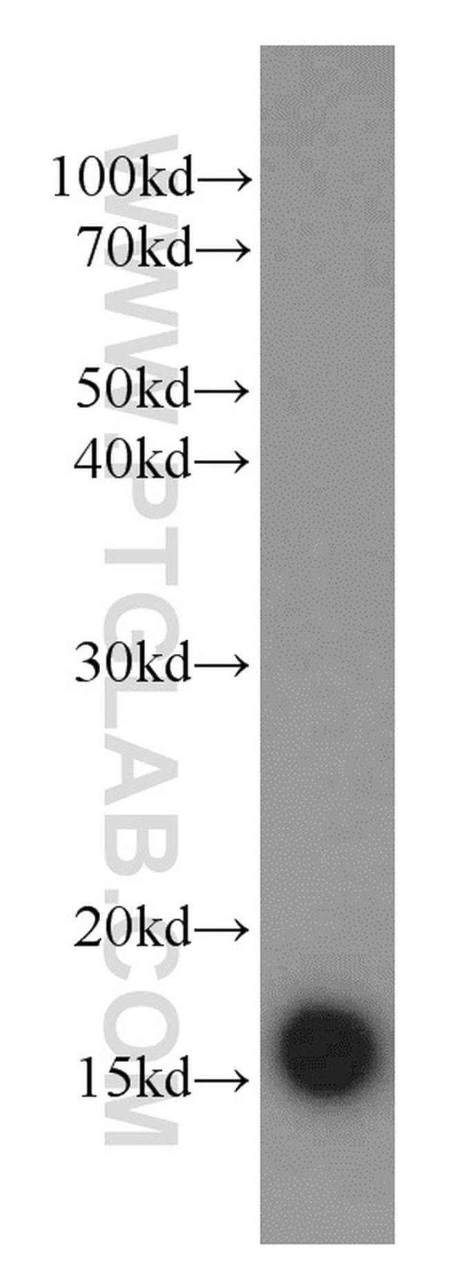 SOD1 Rabbit anti-Human, Mouse, Rat, Polyclonal, Proteintech 150 μL; Unconjugated Produkte