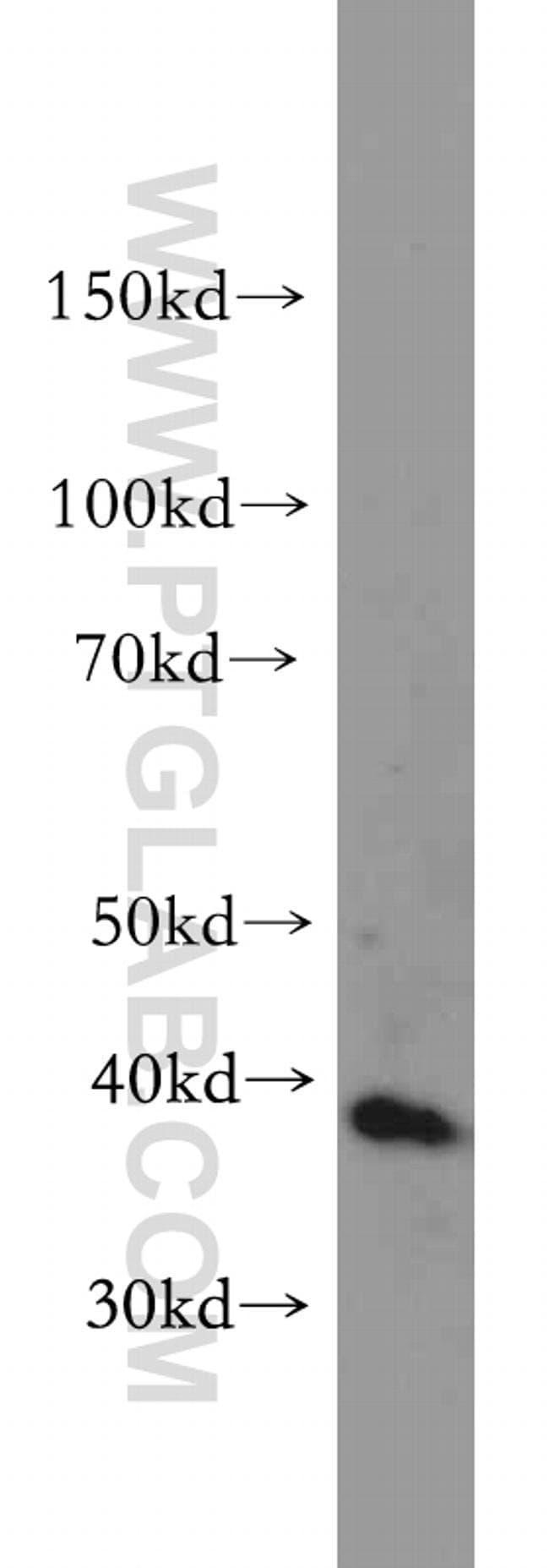 DAP3 Rabbit anti-Human, Mouse, Polyclonal, Proteintech 20 μL; Unconjugated Ver productos