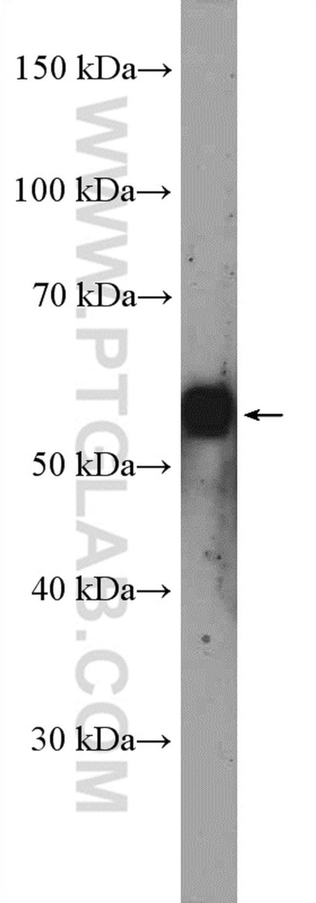 Torsin A Rabbit anti-Human, Mouse, Rat, Polyclonal, Proteintech 20 μL; Unconjugated Ver productos
