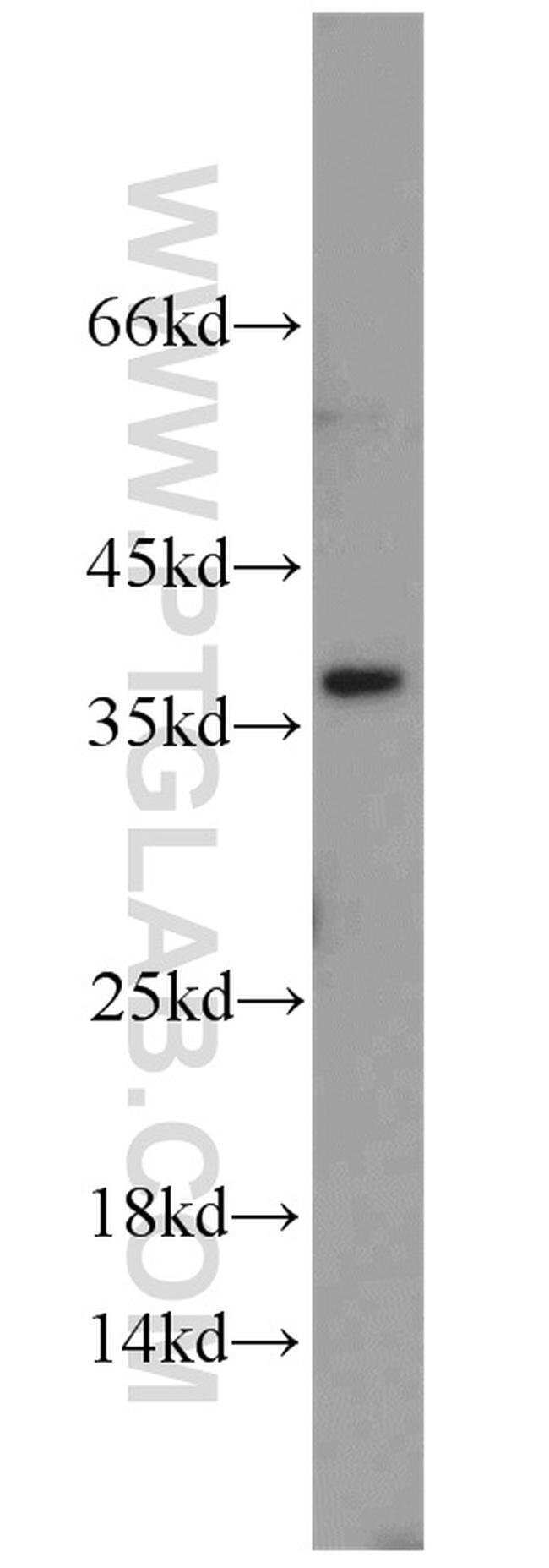 U2AF35 Rabbit anti-Human, Mouse, Rat, Polyclonal, Proteintech 20 μL; Unconjugated voir les résultats