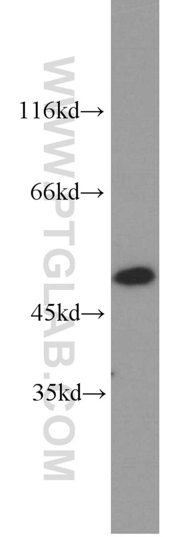 ACTL6A Rabbit anti-Human, Mouse, Rat, Polyclonal, Proteintech 150 μL; Unconjugated Ver productos