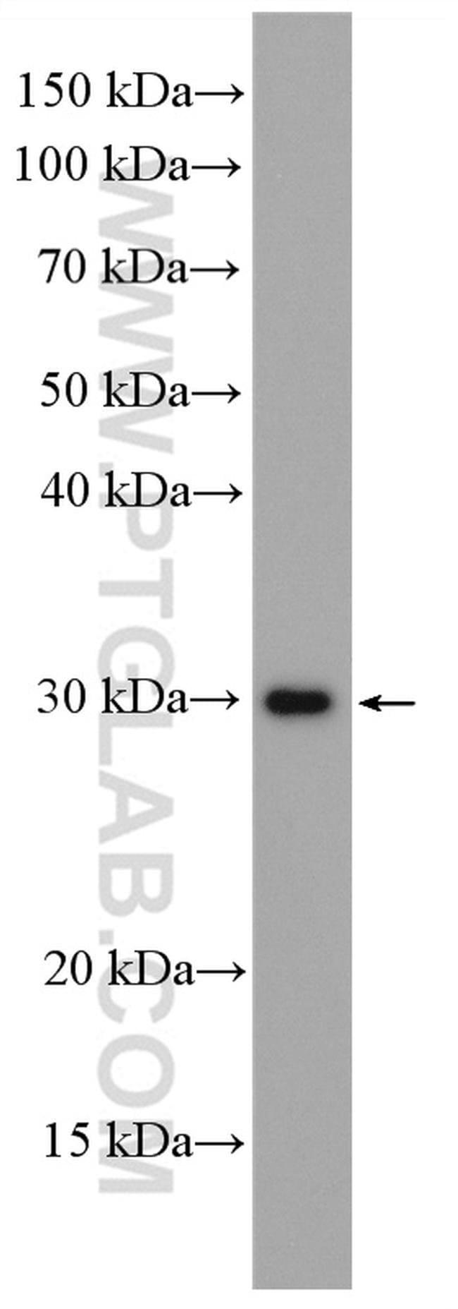 MMP7 Rabbit anti-Human, Mouse, Polyclonal, Proteintech 150 μL; Unconjugated Ver productos